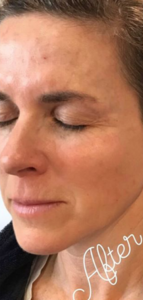 after image sculptra treatment